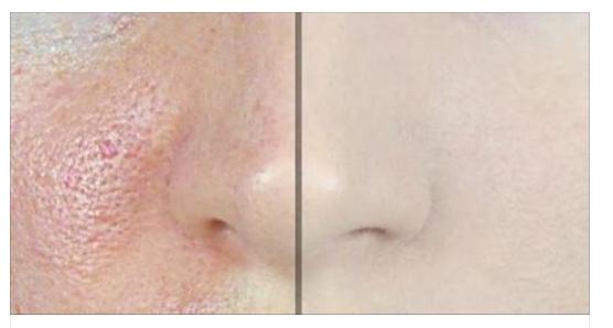 Comment faire disparaître les pores avec seulement 1 ingrédient!