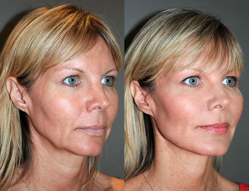 Before Amp 1 Day After Age 48 Y Lift 174 Accentuated The