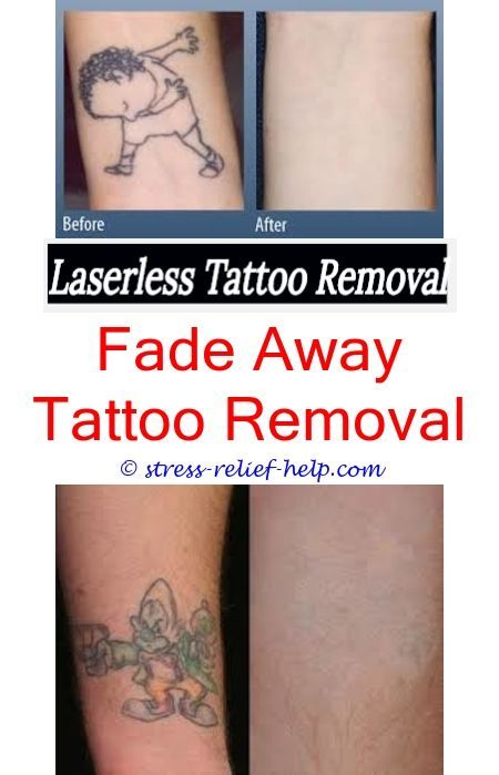 Can you fully remove a tattoo.How many sessions to remove ...