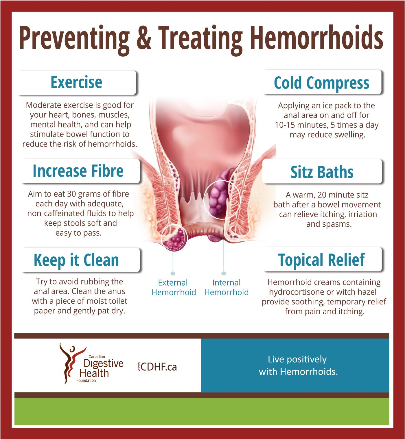 new hemorrhoids education guide hemorroids are one of the