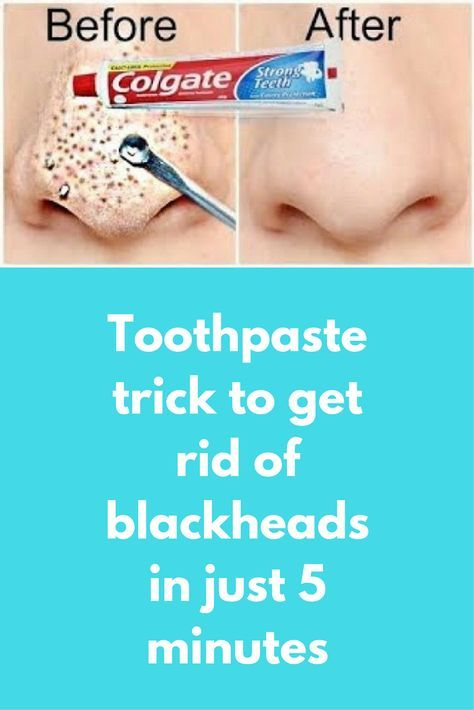 Toothpaste trick to get rid of blackheads in just 5 minutes Blackheads are  very stubborn and… | How to remove pimples, Get rid of blackheads, How to  get rid of acne