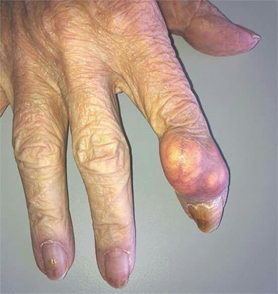 What is the diagnosis? - Gonococcal arthritis - Heberden's node - Rheumatoid arthritis -…