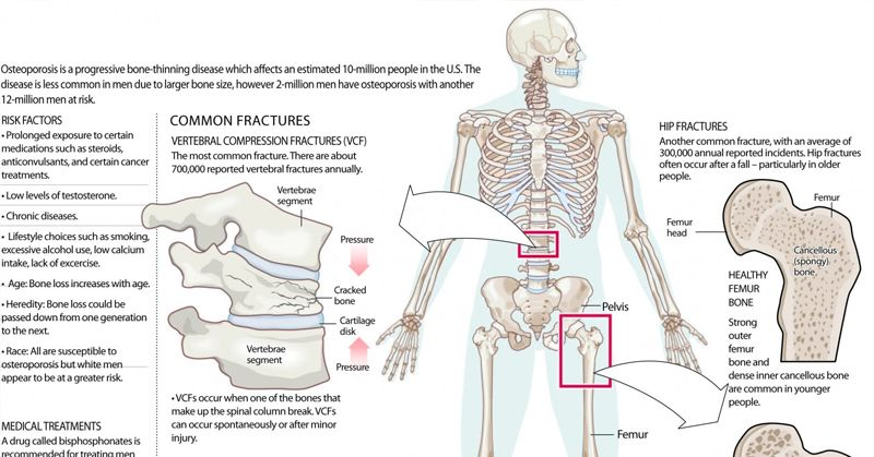 Build Stronger Bones And Joints Diagram Wiring Diagram