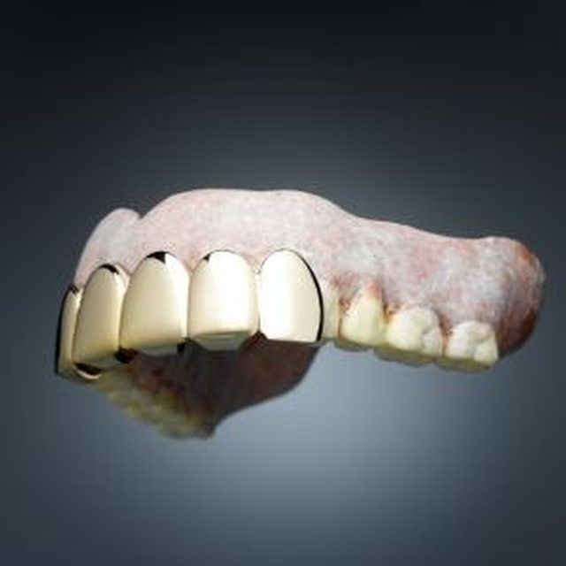 Get Stains Off of Dentures http://www.thedaviedentist.com/home  Denture cleaners, How to clean
