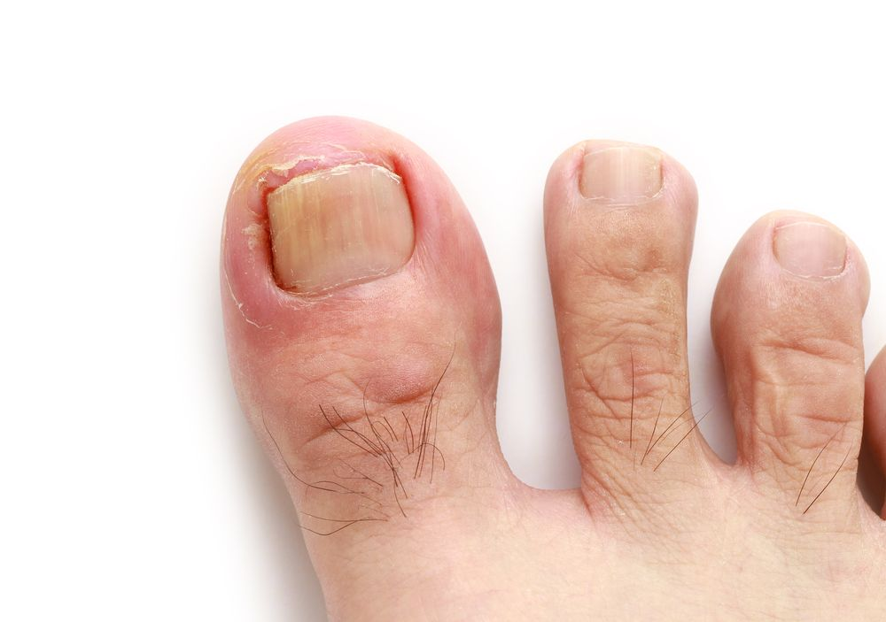http://www.sgdirectory.com/treat-ingrown-toenail-without-surgery ...
