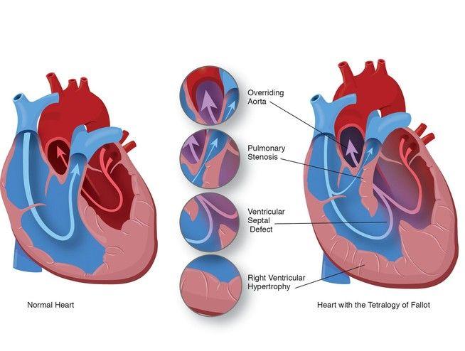 Pin By Nonas Arc On Tetralogy Of Fallot Tof Congenital Heart