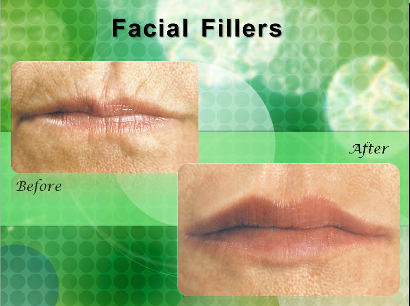 Facial in tampa fl are