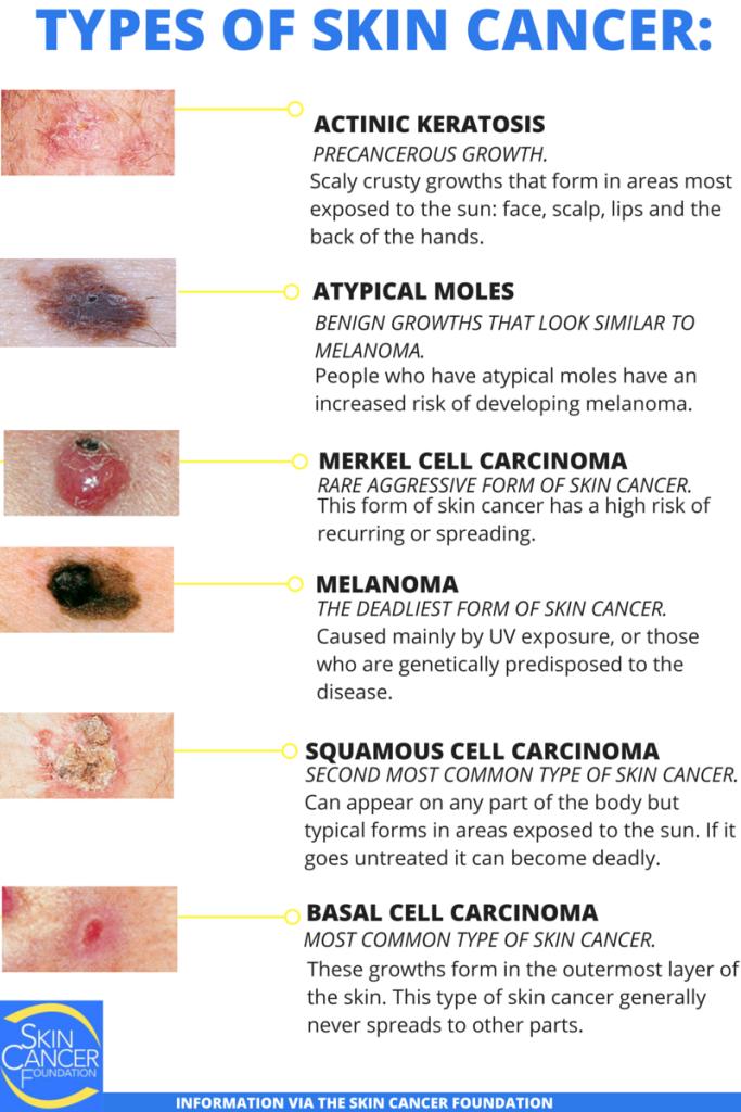 skin cancer types   spelling out skin cancer   advanced, Skeleton