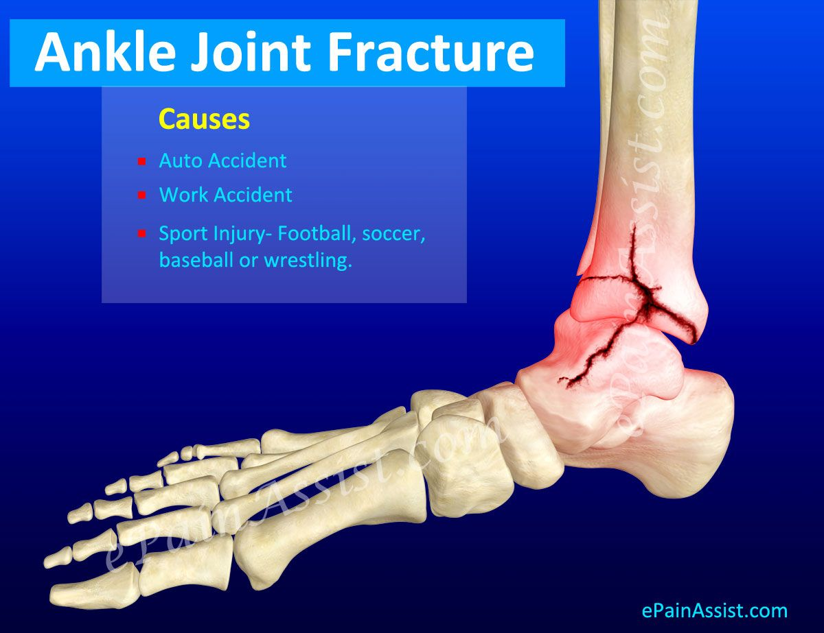 Ankle Joint Fracture | Trimalleolar fracture | Ankle ...