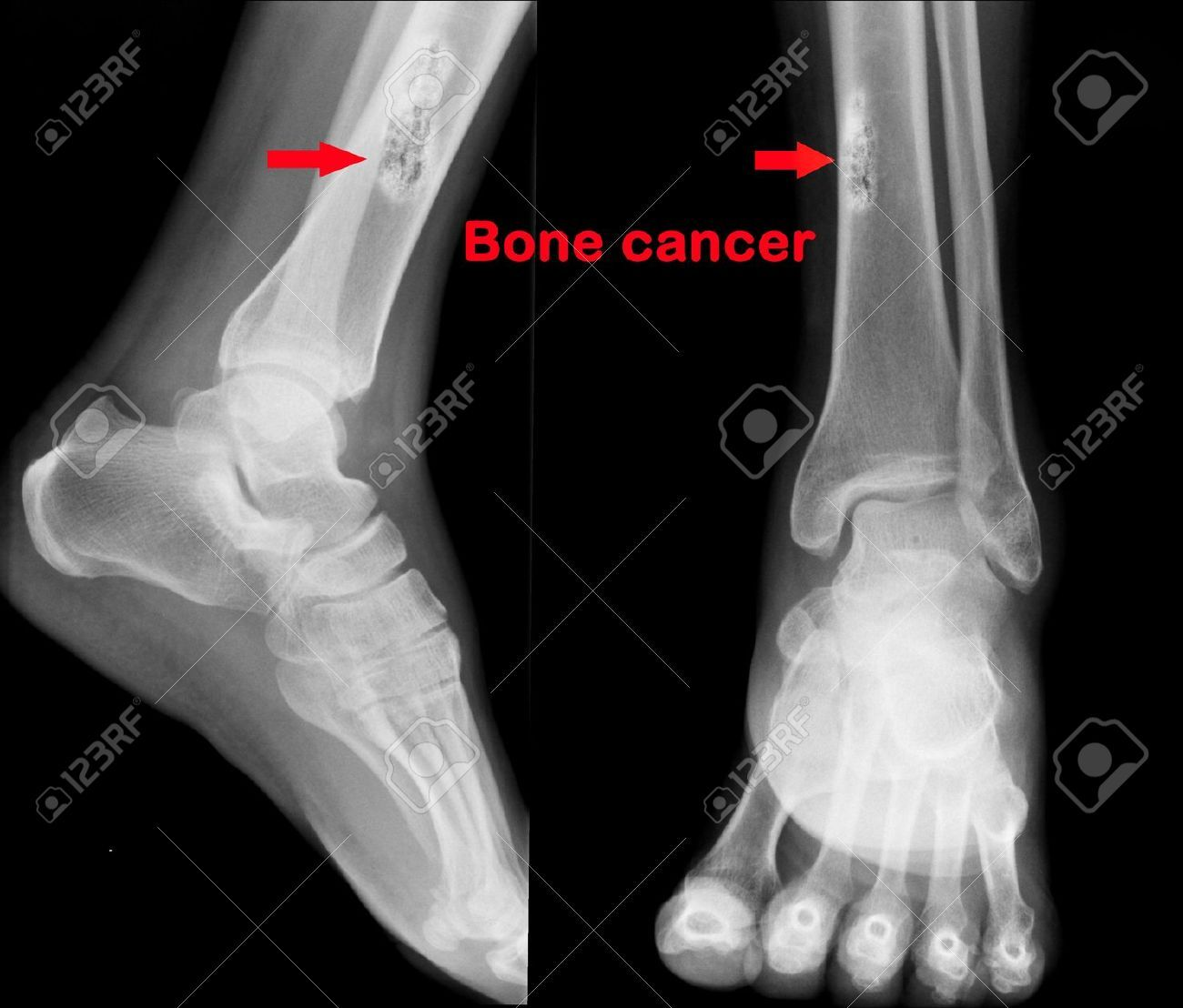 X Ray Of Bone Cancer In Tibia