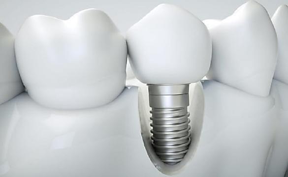 Consulte Precios de Implantes Dentales: Más Baratos De Lo Que Creía