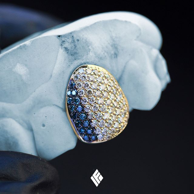 14k Yellow Gold Diamond Cap Grill Fully Iced Out With Blue And White Diamonds Custom Made To Order Grillz Customjewelry If Diamond Grillz Grillz Gold Teeth