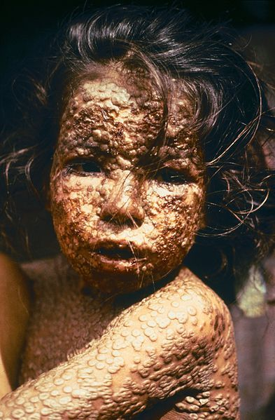 The suffering of smallpox. This child was infected with the disease in 1973. Humans have aggressively worked toward the extinction of many species of viruses and bacteria in the cause of disease eradication. The smallpox virus, which once wiped out most of the native population of North America, is now extinct in the wild, although samples are retained in laboratory settings. The last naturally occurring case was diagnosed on October 26, 1977.