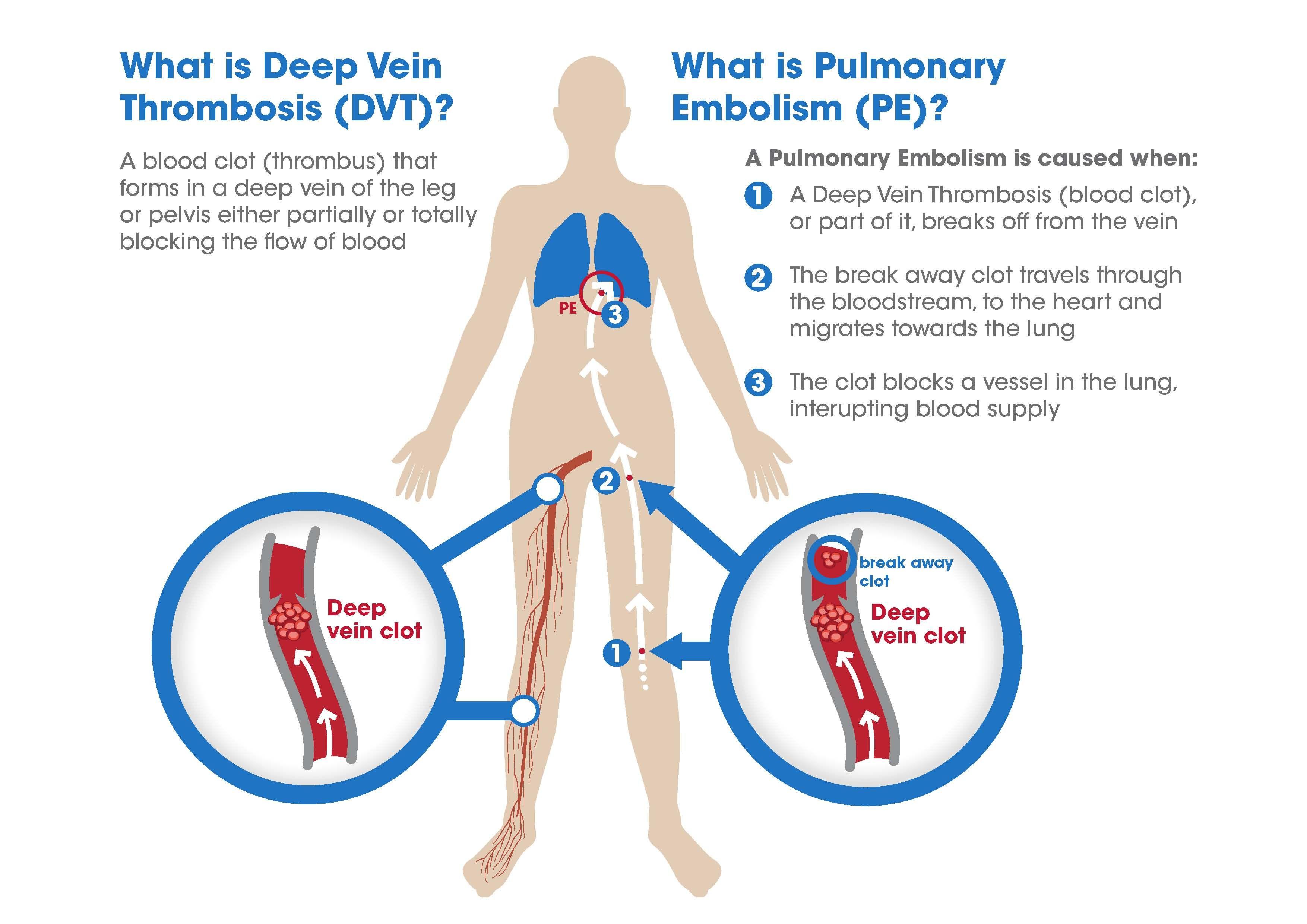 cephalic vein thrombosis prognosis – onehotbitch, Human Body