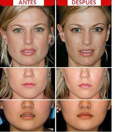 Botox labios antes y despues de adelgazar
