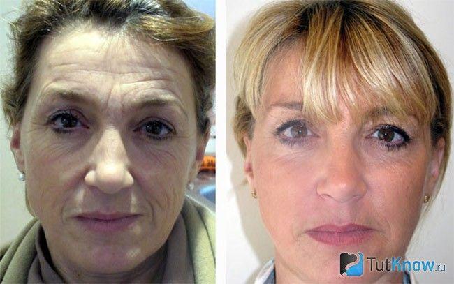 золотые нити для лица до и после фото
