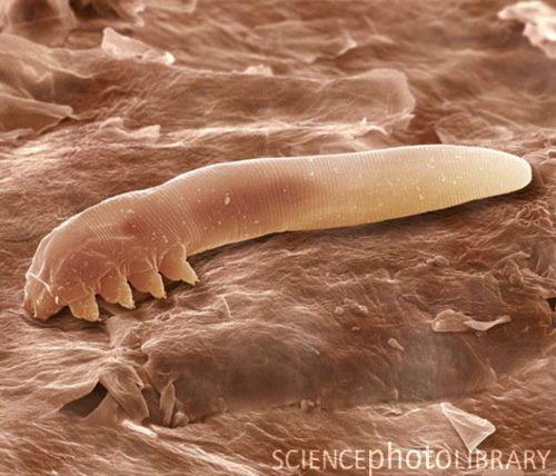"""Eyelash mite. Coloured scanning electron micrograph (SEM) of an eyelash, or follicle, mite (Demodex folliculorum), a harmless parasite which lives inside human hair follicles."" -"
