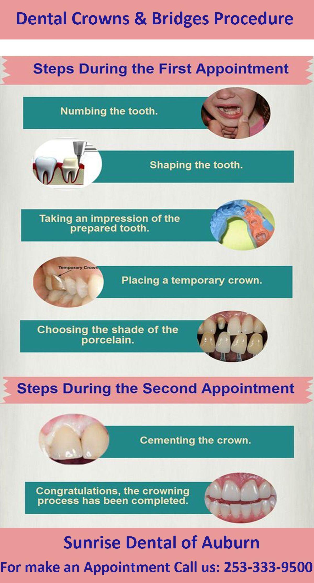 Condemned dental crown kids teethwhiteningstrips