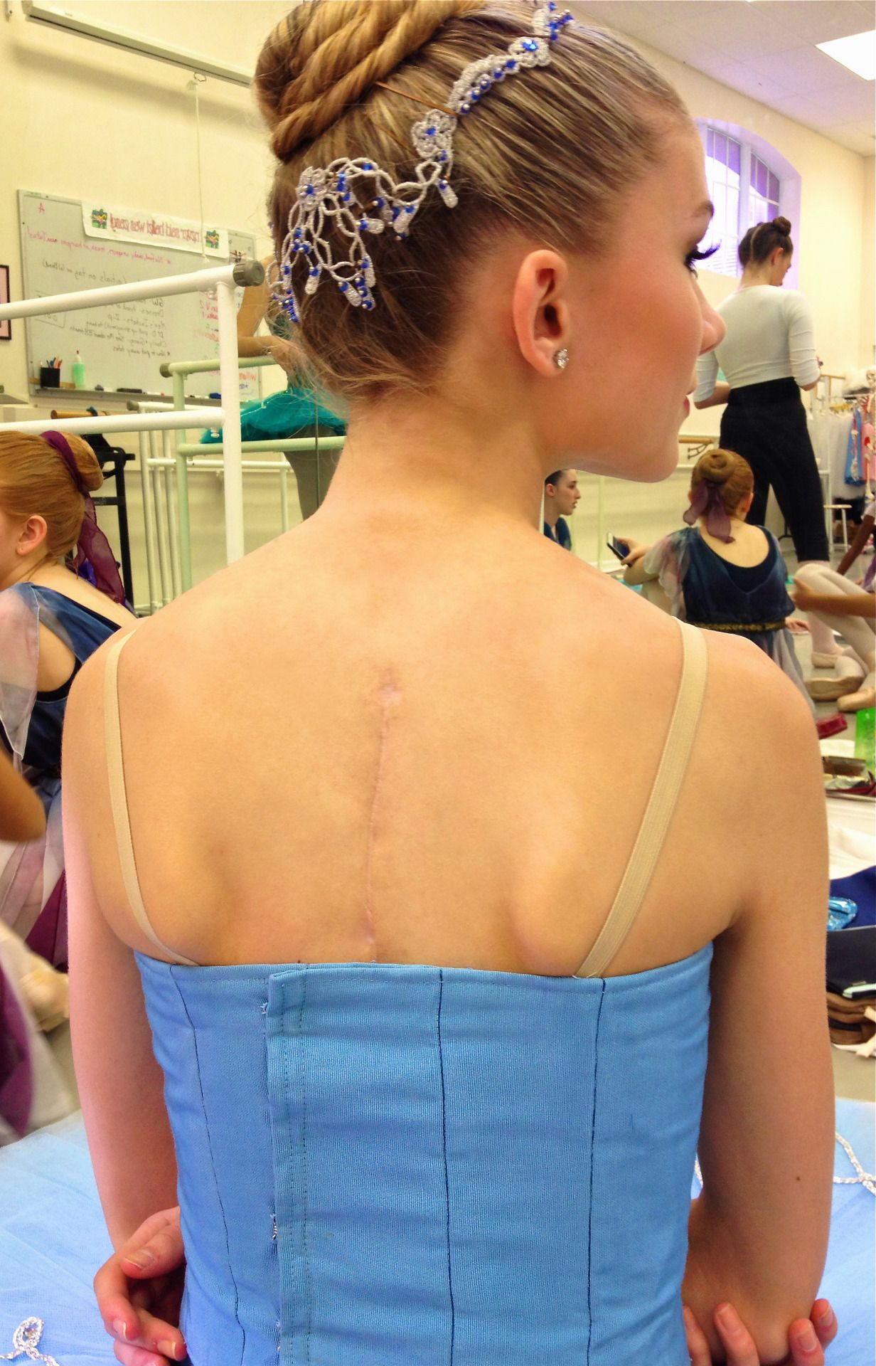 Pin on Back Surgery Recovery