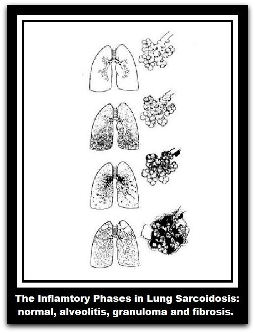Inside Inflammation: Sarcoidosis | Lungs