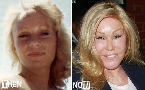 Plastic Surgery Before And After Gone Wrong Catwoman ...