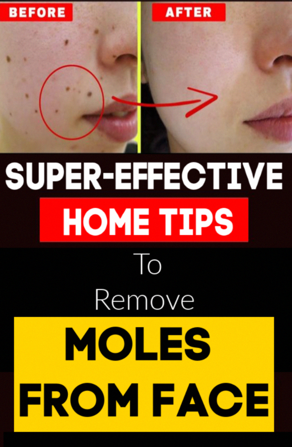 4 Super-Effective Home Tips To Remove Moles From Face # ...