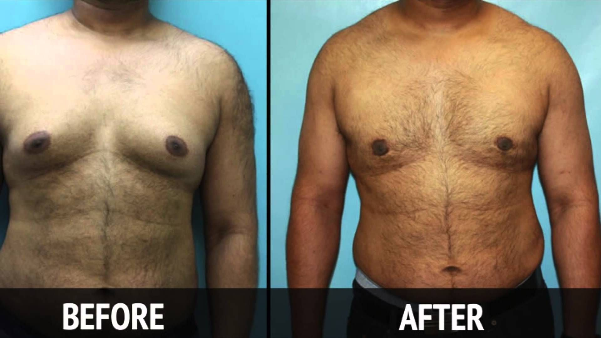 Pin On Male Breast Reduction In Kolkata