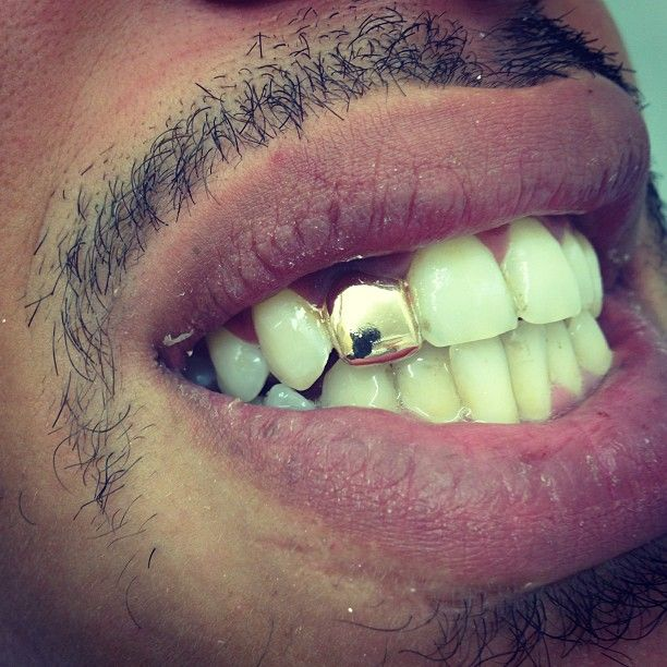 Grillz Platinum Silver or Gold Plated Teeth Mouth Grills Bling Hip Hop –  Single Tooth Cap