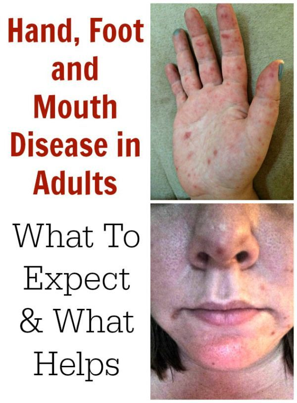 Adult get hand foot and mouth disease