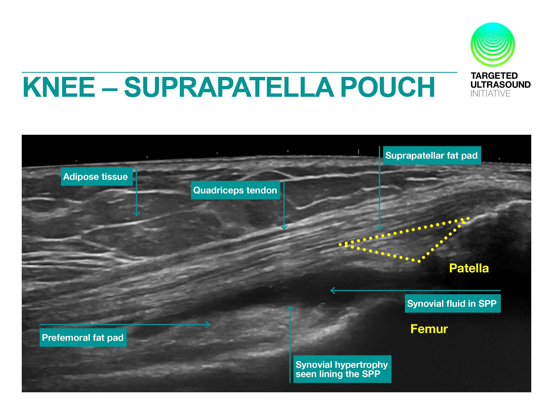 Examen longitudinal suprapatelar. | Ultrasound, Sonography ...