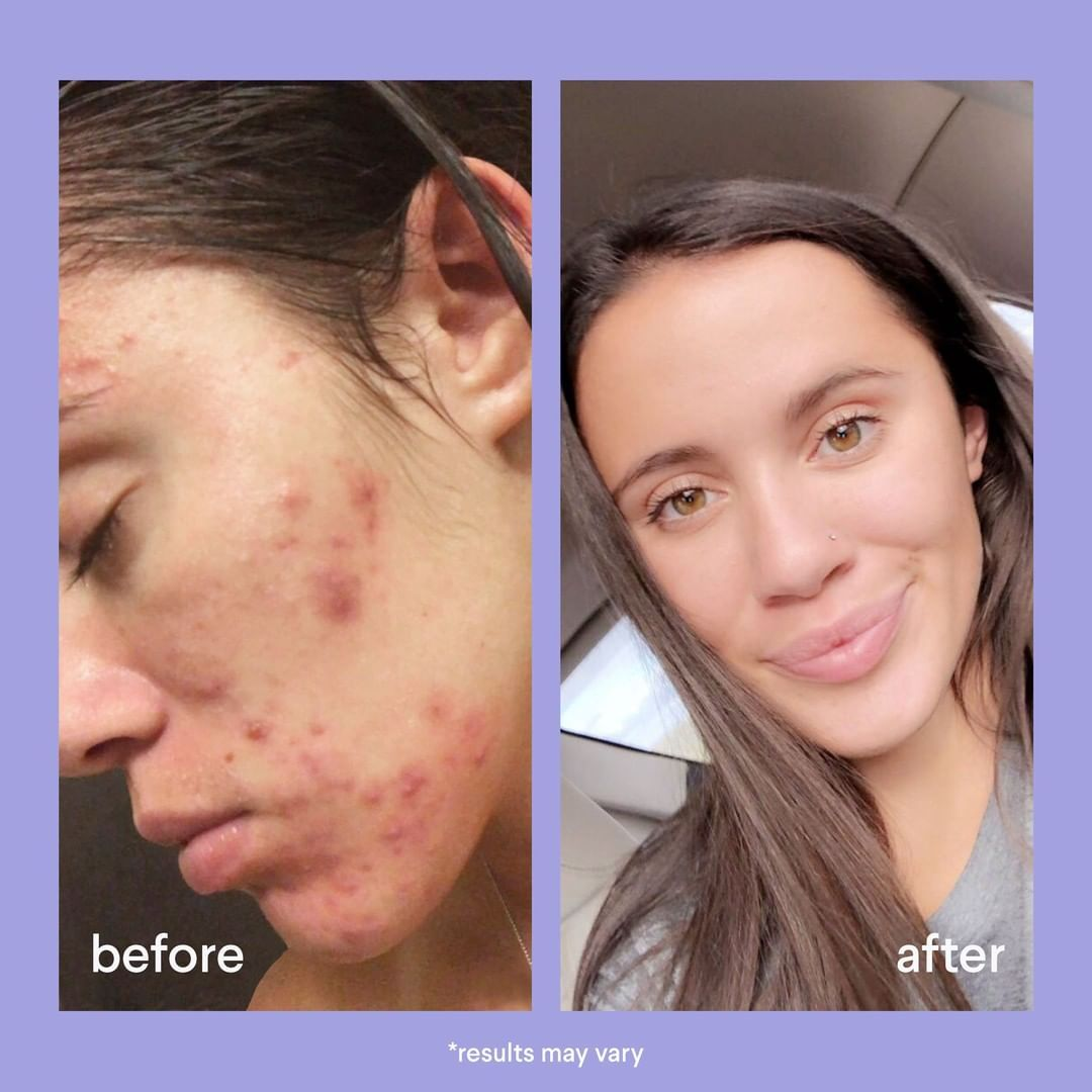 Before And After Skin Care Pictures Skin Care Pictures Skin Skin Care