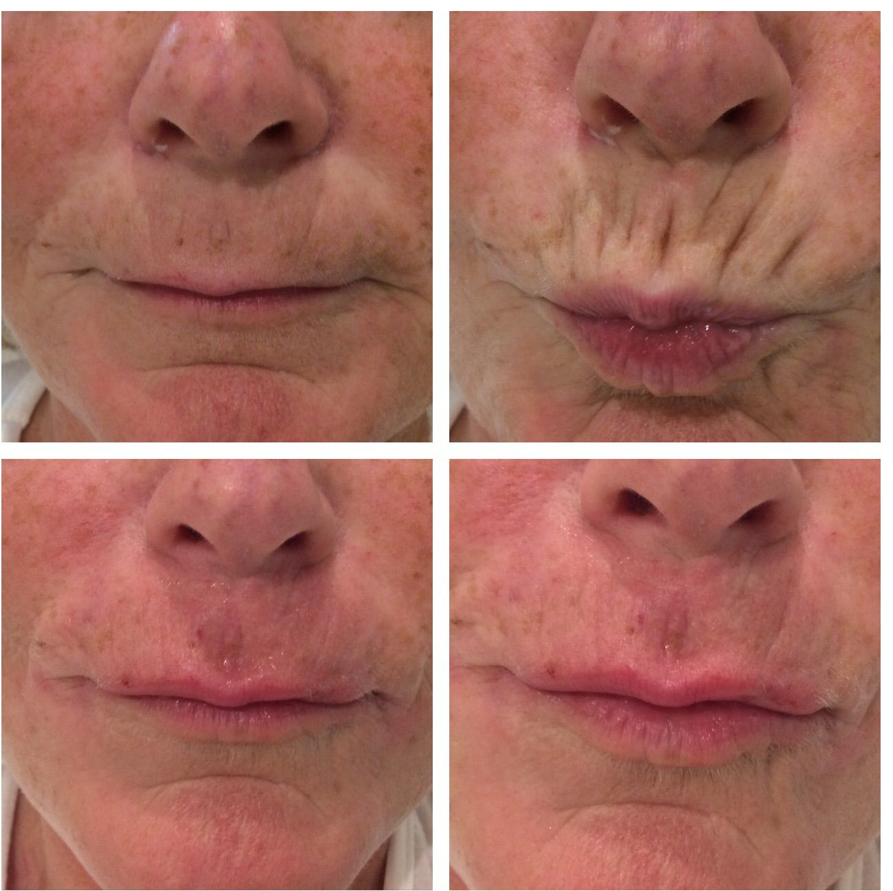 Before & After PDO Threads to top lip at AB Medical UK