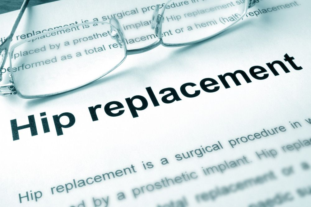 Anterior Vs Posterior Hip Replacement Tennessee Orthopaedic Alliance Hip Replacement Hip Implants Implants