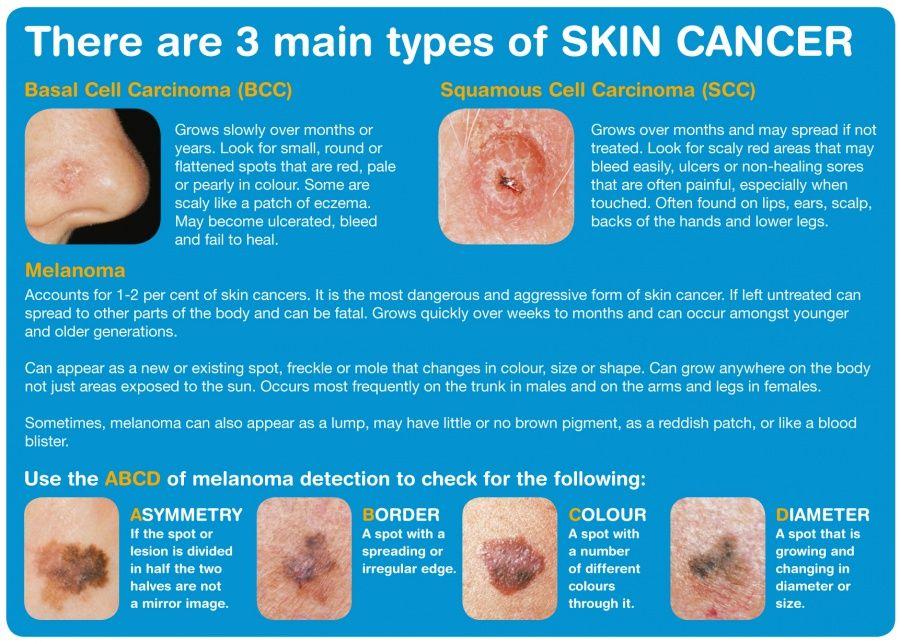 Risultati immagini per melanoma spread world