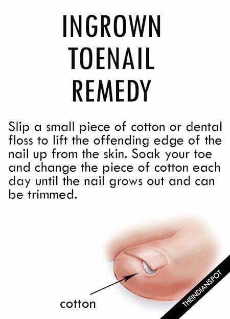 how to make toenails healthy again