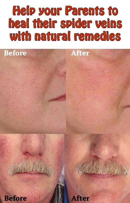 get rid of red veins on face
