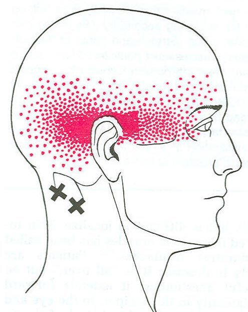 myofascial trigger points referred pain areas - Google Search ...