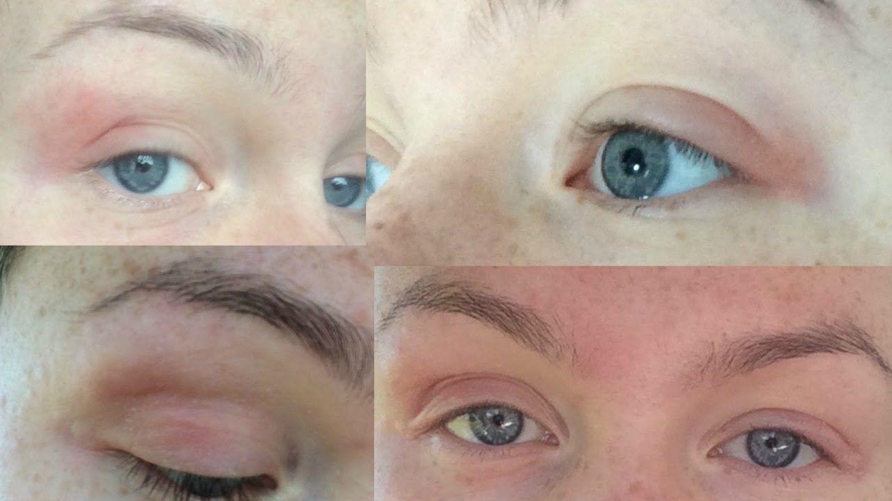 How I Cured My Eczema/Dermatitis Naturally EYELIDS