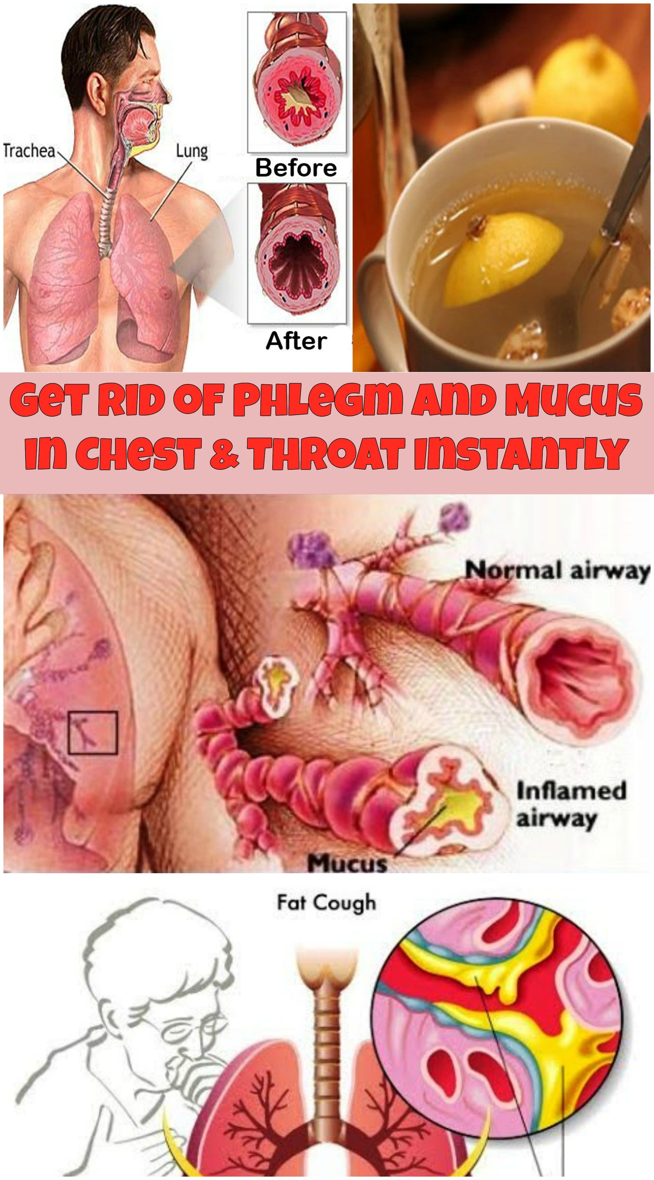 836b659a3ffdbe85c6fdab39c29f2f4d - How To Get Rid Of Phlegm In Chest Asthma