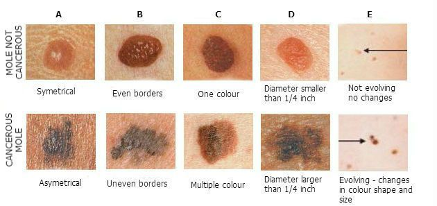 the dangers symptoms and treatment of skin cancer a malignant disease Malignant cancer is any form of cancer or growth that can spread to other parts of the body in a process called metastasis it is compared to benign growths or cancers that do not easily spread to other parts of the body and may be much easier to treat malignant can be defined as progressive, bad.