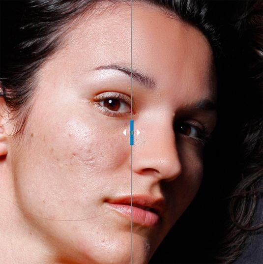 836c5b146abe2c51819bbf510115b61d - How To Get Rid Of Red Blotchy Skin In Photoshop