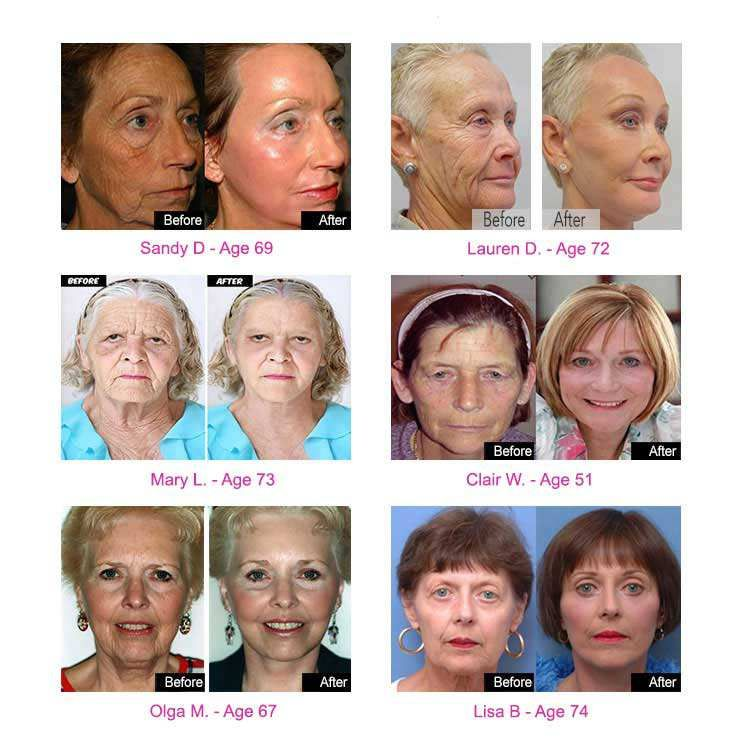 70 Year Old Grandmas Look 40 Again You Will Not Believe Their Transformations Skin Solutions Skin Care Tips Skin Care Remedies