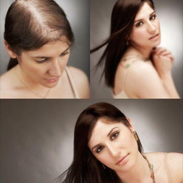 La perdita dei capelli nelle donne | Hair loss women, Hair ...