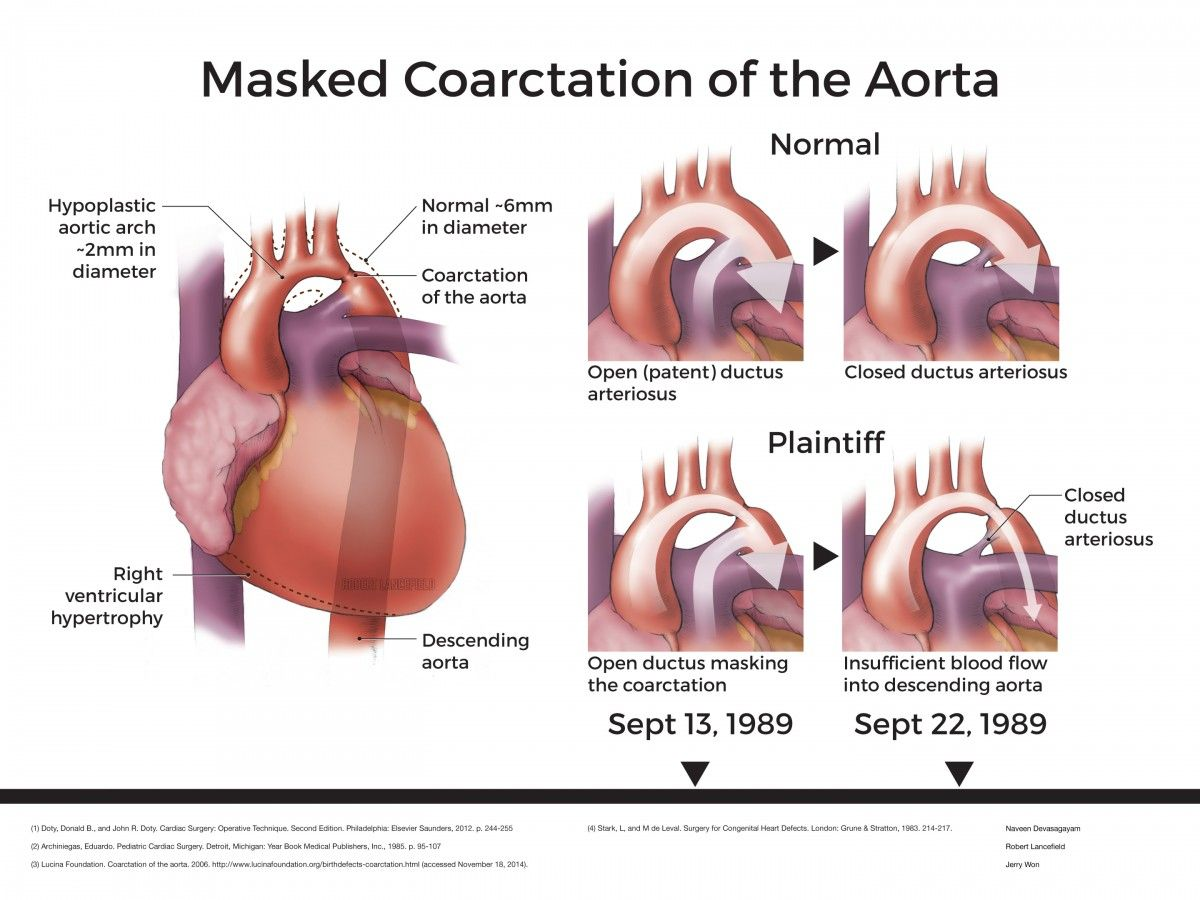 Pin by nonas arc on Coarctation of the Aorta | Pinterest