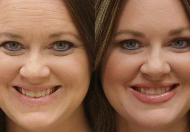 Photo of Fast wrinkle removal: For a dreamlike face with no …