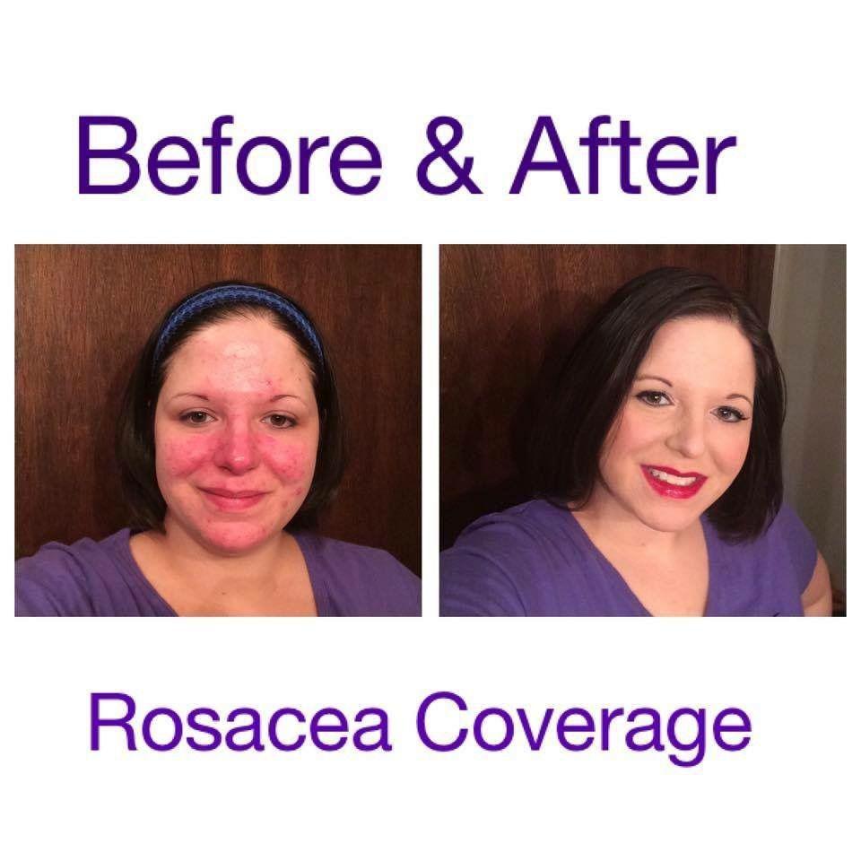 primer for rosacea skin