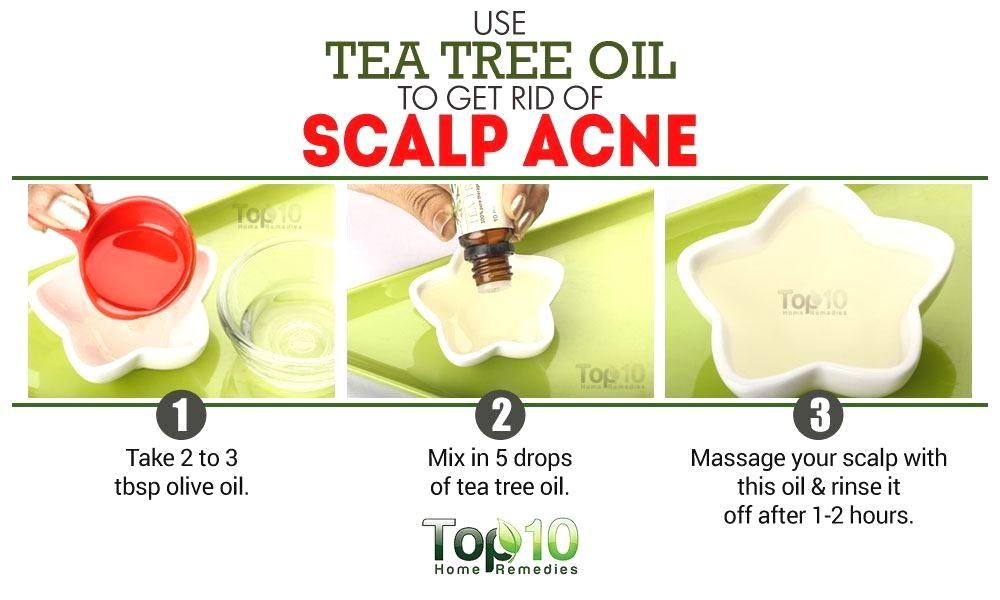 painful sores on scalp sore scalp treatment