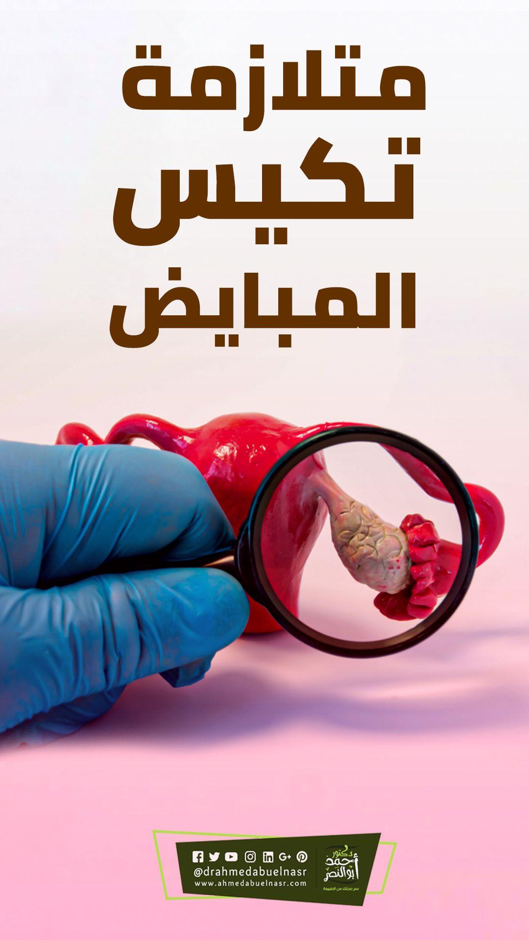 علاج مشكلة متلازمة تكيس المبايض Movie Posters Movies Poster