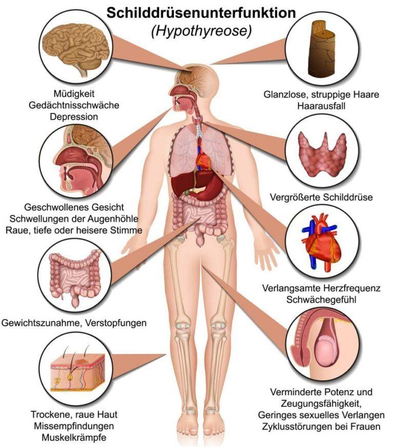 24+ Diagnose der Hashimoto Thyreoiditis – was gilt es zu beachten   Hashimoto Info.de
