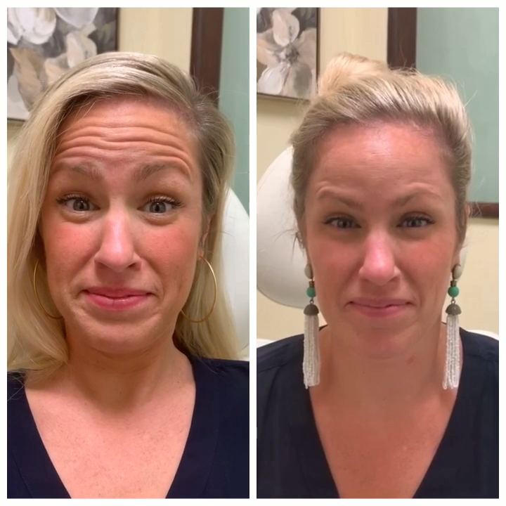 Facial exercise before and after photos, heavy hips